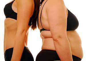 Obesity Italia